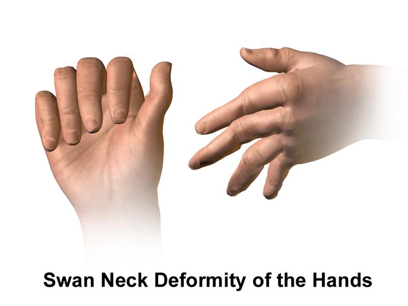Key Difference Between Polymyalgia Rheumatica and Rheumatoid Arthritis