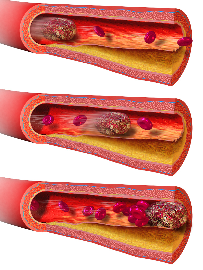 Key Difference Between Thrombus and Embolus