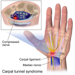 Difference Between Arthritis and Carpal Tunnel Syndrome