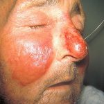 Difference Between Erysipelas and Cellulitis