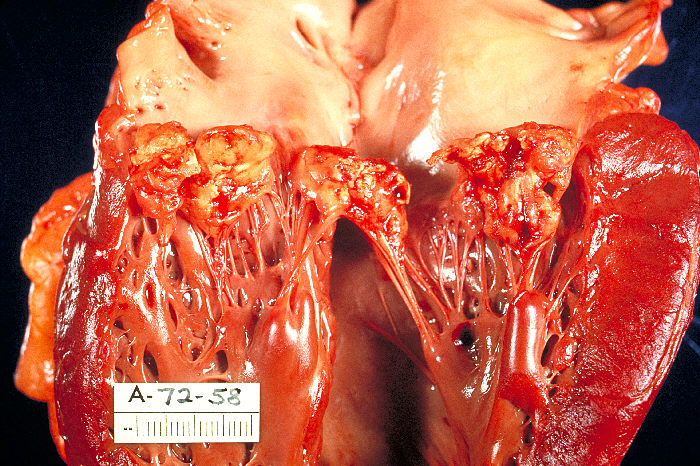 Key Difference Between Rheumatic Heart Disease and Infective Endocarditis