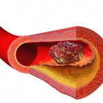 Difference Between Blood Clot and Tissue